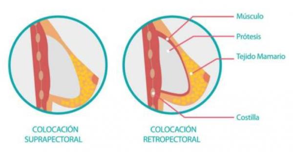 ¿Quieres montar un centro de cirugía estética? El aumento de senos es la operación más demandada