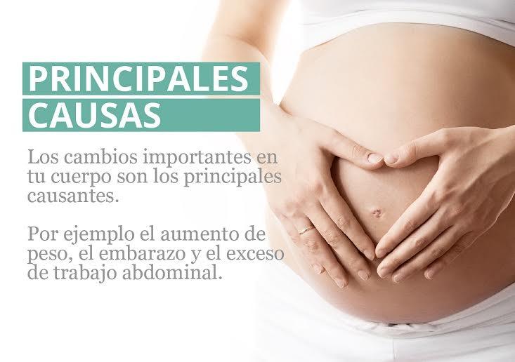 StopDiástasis, una solución que ayuda a las embarazadas a superar la Diástasis con fisioterapia