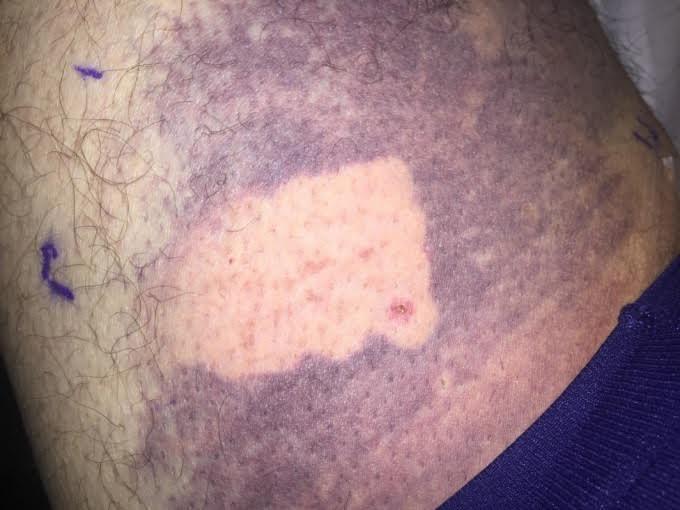 Eliminar un hematoma en un día ya es posible gracias a los dermatólogos de la Clínica Bioláser
